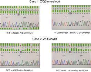 Identificación de los alelos nulos PI*Q0amersfoort y PI*Q0cardiff.
