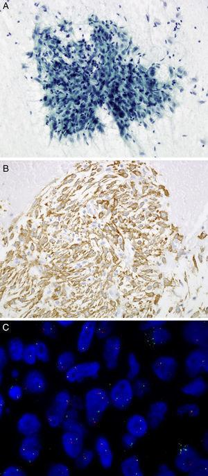 (A) Transbronchial FNA: spindle cells admixed with lymphoplasmacytic cells. Papanicolaou, 20×. (B) Cell block: tumor cells show cytoplasmic expression of the protein ALK using D5F3 antibody. 20×. (C) ALK FISH break-apart probe (Vysis, Abbott Molecular) showing a typical rearranged positive pattern with mainly one fused and one split signals (1F1O1G).