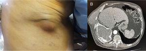 A) Tumoración dolorosa en pared torácica. B) Tomografía axial computarizada que muestra colección pleural con superficie calcificada con zona de rotura y trayecto fistuloso entre ambas colecciones.