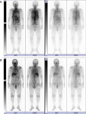 67Ga scintigraphy findings before (A) and 3 months after the administration of antituberculosis drugs (B).