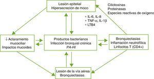 Patogenia de las bronquiectasias. HI: Haemophilus influenzae&#59; IL: interleuquina&#59; LTB4: leucotrieno B4&#59; PA: Pseudomonas aeruginosa&#59; TNF: factor de necrosis tumoral. Tomada de: Fuschillo et al.4.