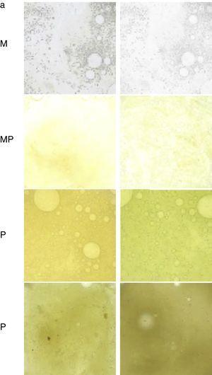 Tabla para valorar la coloración del esputo de menor a mayor purulencia M: mucoso&#59; MP: mucopurulento&#59; P: purulento. Fuente: Murray et al.12.
