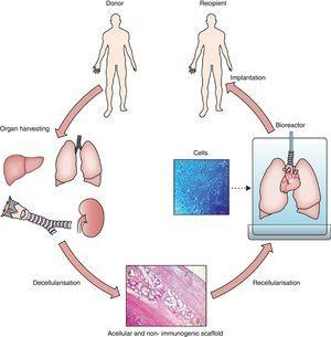 General process of lung bioengineering. A donor lung is decellularized and the organ scaffold is seeded with cells and placed into a bioreactor for lung biofabrication. See text for detailed explanation. Source: Reproduced from Ref. 32, with permission of the copyright owner of The Lancet.