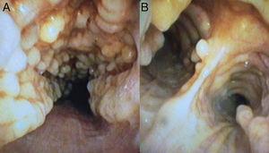 Imagen de broncoscopia a nivel traqueal (A) y de carina principal (B) donde observamos protusiones cartilaginosas irregulares hacia la luz que respetan completamente la pars membranosa.
