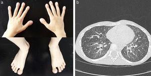 a) Acropaquias en dedos de manos y pies. b) TC pulmonar de control con progresión del patrón en vidrio deslustrado y aparición de nuevas lesiones quísticas.