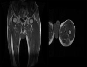 A la derecha se observa un corte sagital de la RMN musculoesquelética y a la izquierda un corte coronal, donde se aprecia la extensión de la afectación tumoral a este nivel.