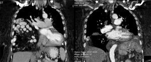 Computer tomography scan before and immediately after surgery showing the right lung expansion (at the right).