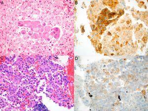 Imágenes microscópicas del tumor en muestras obtenidas por EBUS-TBNA y de las respectivas tinciones inmunohistoquímicas con anticuerpo anti-PD-L1 E1L3N. A) Adenocarcinoma (hematoxilina-eosina, 40×). B) Tinción de membrana >50% de las células neoplásicas (PD-L1 E1L3N XP Rabbit mAb, 40×). C) Adenocarcinoma (hematoxilina-eosina, 40×). D) Tinción de membrana >1% de las células neoplásicas (PD-L1 E1L3N XP Rabbit mAb, 40×).