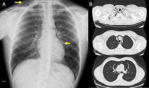A) Radiografía de tórax del paciente, en la que se aprecian (señalados con flechas) signos de enfisema subcutáneo a nivel laterocervical derecho y área de hiperclaridad paracardíaca izquierda, sugestiva de neumomediastino. B) TAC torácica (ventana parénquima) en la que se aprecia, a varios niveles, el extenso neumomediastino que disecaba las estructuras mediastínicas.