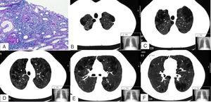 Imágenes de la biopsia renal (A) y de la TC pulmonar (B-F). En A se muestran 2 glomérulos con proliferación extracapilar o semilunas (ácido peryódico de Schiff). B, C, D, E y F son diferentes cortes de la TC pulmonar en los que se aprecia un enfisema mixto centrilobulillar bilateral, con zonas de afectación paraseptal y bullas subpleurales de predominio en lóbulos superiores. En F se puede observar uno de los nódulos de 3,1mm (línea discontinua).