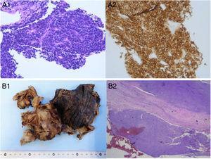 A) Biopsia con aguja gruesa de la masa pulmonar: anatomía patológica microscópica de la muestra, estableciéndose un diagnóstico de carcinoma microcítico por la presencia de células de pequeño tamaño con núcleo hipercromático oval o fusiforme finamente granular, con nucléolo poco llamativo, membrana nuclear fina, citoplasma escaso y poco teñido, estroma escaso y vascular (A1), e inmunohistoquímica positiva para CD56 (A2). B) Muestra intraoperatoria (lobectomía inferior derecha y pleurectomía parietal): anatomía patológica macroscópica (B1); visión panorámica de la anatomía patológica microscópica de la muestra intraoperatoria, objetivándose un tumor limitado a la pleura sin afectación del parénquima pulmonar (B2).
