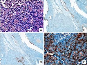 (A) Solid islets and cell clusters separated by a fibrous stroma. Cells display eosinophilic cytoplasm, rounded nuclei and fine granular chromatin. Metastatic lesion: Mature glandular tissue staining positive for CDX2 (B) and CK7 (C). (D) Tumor cells staining positive for chromogranin-A.