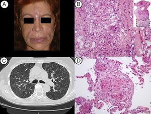 (A) Patient with erythema and edema at the inter-ciliary region and naso-genian sulc; (B) the skin biopsy revealed a deep and severe inflammatory process, depicting lipogranulomas with multinucleated giant cells of the foreign body type (H&E, 40× and 200×); (C) HRCT-L showing a micronodular milliary pattern of the upper lobes, ground glass areas and slight thickening of interlobular septae; (D) microphotograph of the lung biopsy showing sarcoid-like epithelioid granulomas with multinucleated giant cells of the foreign body type (H&E, 200×).