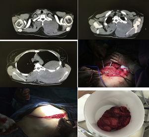 Imagen TAC de un tumor desmoide gigante de pared torácica con crecimiento extra e intratorácico e imagen de la resección quirúrgica.