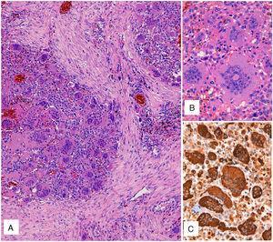A) Tinción con hematoxilina-eosina. Proliferación celular de patrón sólido con células mononucleares y numerosas células gigantes multinucleadas de tipo osteoclasto. B) Detalle de las células gigantes de tipo osteoclasto, con numerosos núcleos sin atipia ni actividad mitósica significativa. C) Inmunotinción para CD68, tanto del componente mononuclear como de las células gigantes de tipo osteoclasto.