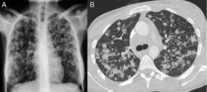 Radiografía de tórax posteroanterior (A) con opacidades pseudonodulares parcheadas que predominan en los campos medios y superiores. No se aprecia derrame pleural ni ensanchamiento mediastínico. TC de tórax en corte transversal (B) en la que se observan opacidades pulmonares centrolobulillares con tendencia a la coalescencia, de predominio en los campos superiores y medios.