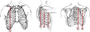 Predefined anatomic lines (1—linea mid-clavicularis, 2—linea axillaris anterior, 3—linea axillaris media, 4—linea axillaris posterior, 5—linea scapularis, 6—linea para vertebralis).