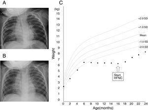 Chest X-ray images before the initiation of high-flow nasal cannula (A) and 1 month (B) after the initiation of high-flow nasal cannula. (C) Growth chart of the patient. Source: Ref. 5.