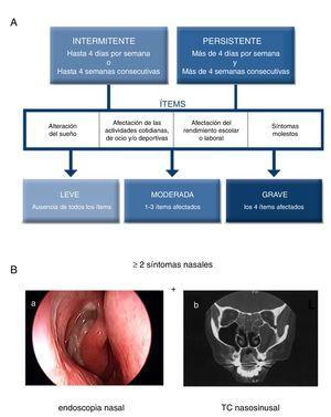 Criterios diagnósticos de la rinitis alérgica y la rinosinusitis crónica con pólipos nasales (RSCcPN). A)Clasificación de la rinitis alérgica en función de su duración y gravedad, según la guía ARIA (modificada de Valero et al.27). B)La rinosinusitis crónica se define por la presencia de al menos dos síntomas nasosinusales, uno de los cuales debe ser o la obstrucción/congestión/bloqueo nasal o la rinorrea (anterior/posterior), junto con dolor/presión facial o reducción/pérdida de olfato con una duración superior a las 12semanas. Y además alguno de los siguientes hallazgos: signos endoscópicos de pólipos nasales, rinorrea mucopurulenta del meato medio, edema/obstrucción de la mucosa (meato medio) y/o cambios en el TC de los senos paranasales. En la figura B: a)visión endoscópica de pólipo nasal en meato medio, y b)imagen de TC nasosinusal con afectación del seno maxilar izquierdo y los senos etmoidales bilaterales en un paciente con RSC (2).