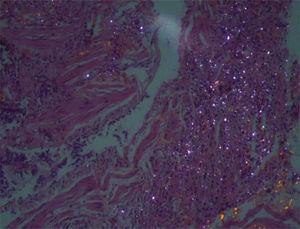 La microscopia óptica con luz polarizada muestra partículas birrefringentes en relación con sílice sobre áreas de fibrosis intersticial.
