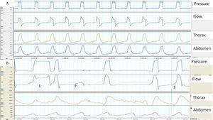 A) y B) Ejemplos de sincronía paciente-ventilador normal y patológica, determinados con la ayuda de bandas toracoabdominales. A) La imagen muestra una sincronía perfecta entre los movimientos tóraco-abdominales del paciente y los ciclos del ventilador (línea continua). B) La imagen muestra en el ciclo 1 un ciclado largo, presumiblemente por fuga (el paciente ha terminado de espirar mientras el ventilador sigue en inspiración) y un esfuerzo ineficaz en el ciclo 2 (movimiento de bandas sin presurización). Por último, en el ciclo 3 se observa que el inicio del ciclo del ventilador está retrasado con respecto al inicio del movimiento de las bandas (retraso de trigger, más claro en la banda abdominal).