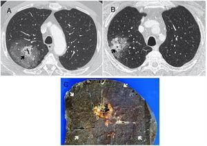 A y B) TC tórax con contraste iv: ventana de pulmón. Masa con parte central sólido cavitada (flecha) y extensa área en vidrio deslustrado circundante. C) Pieza macroscópica de la lobectomía del caso A). Se aprecia la lesión nodular cavitada central (estrella) rodeada de una extensa hemorragia perilesional (flechas) que se correspondía con el vidrio deslustrado de la TC.