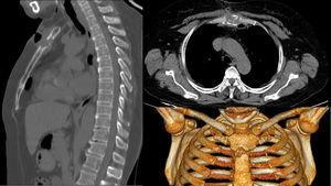 Lesión lítica esternal por tuberculosis.