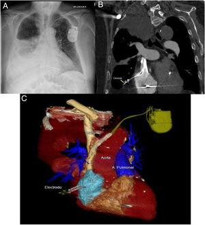 A) Arriba a la izquierda, radiografía de tórax en la que se observa el electrodo de la aurícula derecha con su extremo distal más lateralizado de lo que debería, con derrame pleural ipsilateral asociado. B) Arriba a la derecha, corte coronal donde se observa el electrodo enclavado en el parénquima pulmonar y derrame pleural derecho. C) Abajo, reconstrucción en 3D de la tomografía computarizada en la que puede observarse el electrodo del DAI en el momento de la perforación de la aurícula derecha. A la derecha, A. Pulmonar: arteria pulmonar.