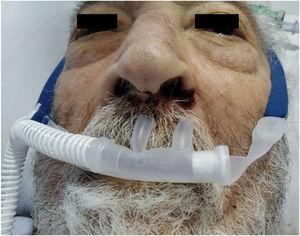 Lesiones ulceradas en fosas nasales secundarias a oxigenoterapia de alto flujo con cánula nasal y lesiones de decúbito en puente nasal provocadas por CPAP con máscara facial.