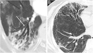 (A) Radiological bronchiectasis (white arrows) in the acute infectious disease (pneumonia) and, (B) radiological bronchiectasis in the fibrotic phase of the infection (free access from Refs. 5 and 6).