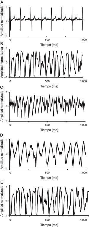 A: ventriculograma en ritmo sinusal registrado en corazón de grupo control. B: trazado fibrilatorio del grupo control. C: trazado fibrilatorio del grupo control durante estiramiento. D: trazado fibrilatorio del grupo tratado con propranolol durante la infusión. E: trazado fibrilatorio del grupo con KB-R7943 durante la infusión. Los trazados en fibrilación ventricular corresponden a 1s de registro.