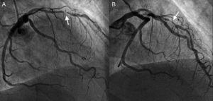 A y B: reestenosis focal y grave (flechas) en el stent del segmento medio de la descendente anterior.
