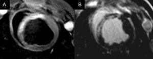 Imagen de resonancia magnética de un corte medioventricular en un infarto agudo de miocardio, donde se muestra el área en riesgo en las secuencias T2-STIR como la zona hiperintensa en el septo anterior (A) y la zona necrótica en las secuencias de realce tardío en la misma localización (B). La diferencia entre la extensión del área en riesgo y la zona necrótica corresponde al miocardio salvado.