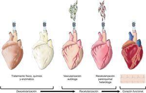 Neorganogénesis: corazón bioartificial. Esquema gráfico de los diferentes pasos de la descelularización y recelularización de un corazón. Inicialmente la descelularización física, química y enzimática cuyo objetivo es la preservación de la matriz extracelular cardiaca y del árbol vascular. A continuación se induce la vascularización autóloga seguida de la recelularización parenquimal heteróloga para, finalmente, generar un nuevo corazón funcional.