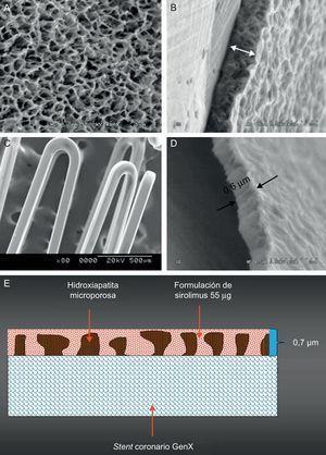 El sistema de stent liberador de sirolimus VESTAsync sin polímero. Imágenes de microscopio electrónico de barrido del recubrimiento de hidroxiapatita microporosa (A), el corte transversal del recubrimiento de hidroxiapatita (B), el recubrimiento final incluida la hidroxiapatita llenada con la formulación de sirolimus (C) y el corte transversal del recubrimiento final (D). Representación esquemática del recubrimiento de la superficie (E).