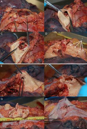 Necropsia del caso 1. A: vista de la aorta en su porción ístmica. B y C: apertura de la aorta y visualización del stent desnudo, sin la cubierta de politetrafluoroetileno. D: extraído el stent, se visualiza el punto de coartación obstructivo (c), el orificio de la subclavia izquierda (s) y los orificios de las arterias intercostales (i), la de mayor tamaño en relación con el aneurisma. E: la pinza muestra el orificio intercostal. F: apertura del orificio que muestra el aneurisma (*). G: apertura del aneurisma, que mide 7 cm. H: esófago con zona de inflamación crónica por la impronta del aneurisma; la flecha señala una solución de continuidad que comunica con el aneurisma, comprobado durante la necropsia.