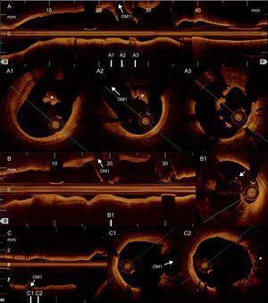 Tomografía de coherencia óptica. A: retirada inicial; se puede comprobar que nuestra guía de angioplastia y la sonda de tomografía de coherencia óptica han atravesado el stent implantado en el ostium de la primera obtusa marginal, dado que este protruye en la luz de la circunfleja; en A1 se observa trombo (+) rojo distal a dicho stent; obsérvese que este tipo de trombo produce una sombra posterior que dificulta tanto la evaluación de la pared arterial como la valoración de los posibles problemas mecánicos subyacentes (p.ej., malaposición); en A2, trombo (+) adherido a los struts del stent; en A3, guía de angioplastia y sonda de tomografía de coherencia óptica en el interior del stent, que también tiene restos trombóticos adheridos a sus struts. B: nueva retirada tras avanzar una segunda guía; B1, segunda guía de angioplastia y sonda de tomografía de coherencia óptica por fuera del stent; además, se visualiza la primera guía introduciéndose en la luz del stent (flecha). C: retirada final; en C1, ostium de la primera obtusa marginal; en C2, tres capas de stent (*) en la pared de la circunfleja tras crush y kissing-balloon. OM1: primera obtusa marginal. Esta figura se muestra a todo color solo en la versión electrónica del artículo.