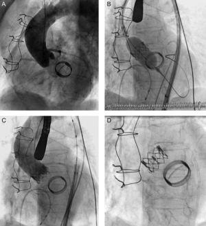 A: aortografía previa al implante. B: liberación de la prótesis. C: aortografía final. D: relación anatómica entre las prótesis.
