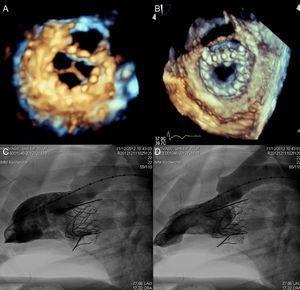 Imagen de válvula Tiara en modelo animal por ecocardiografía tridimensional, con vistas ventricular (A) y auricular (B) y ventriculografía izquierda en diástole (C) y sístole (D). Reproducida con permiso de Banai et al60.