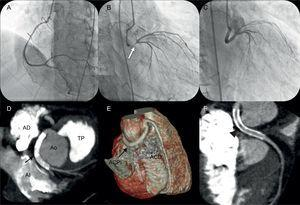 A-C: angiografía coronaria. D-F: angiografía coronaria con tomografía computarizada multicorte. ACD: arteria coronaria derecha; ACPI: arteria coronaria principal izquierda; AD: aurícula derecha; AI: aurícula izquierda; Ao: aorta; TP: tronco de la arteria pulmonar.