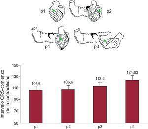 Experimentos en cerdos con tórax abierto (n=32). En la parte superior se puede ver la banda miocárdica desenrollada según Torrent Guasp. En ella están marcados los puntos (p) en los que se han implantado pares de cristales ultrasónicos siguiendo la dirección de las fibras. En la parte inferior, se representan en columnas los valores de media ± error típico de los tiempos de inicio de la contracción en los puntos señalados. La zona subpulmonar y la pared libre del ventrículo izquierdo son las zonas de contracción más precoz, seguidos del mesocardio de la cara anterior del ápex correspondiente al segmento descendente en la banda. Finalmente, se contrae el epicardio de la cara anterior del ventrículo izquierdo correspondiente al segmento ascendente de la lazada apexiana (datos propios no publicados).