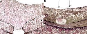 Detalle de la respuesta arterial, tinción elastina de Van Gieson. A: balón control; crecimiento neointimal significativo, con endotelización completa de la superficie luminal, sin datos de inflamación y sin restos de fibrina. B: balón liberador de paclitaxel 1 (iVascular); menor crecimiento neointimal, con aceptable endotelización luminal pero no completa (flechas) y acumulación importante de fibrina alrededor del stent en profundidad (color parduzco).