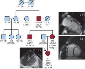 Árbol genealógico. ACTC1: gen de alfa-actina cardiaca; CIA-OS: comunicación interauricular de tipo ostium secundum; HVI: hipertrabeculación del ventrículo izquierdo; IM: infarto de miocardio; MCR: miocardiopatía restrictiva; MNCVI: miocardiopatía no compactada del ventrículo izquierdo; NE: no evaluado. Los círculos indican mujeres y los cuadrados, varones; los símbolos negros corresponden a individuos afectados. Esta figura se muestra a todo color solo en la versión electrónica del artículo. *Evaluación macroscópica en el momento del trasplante cardiaco.