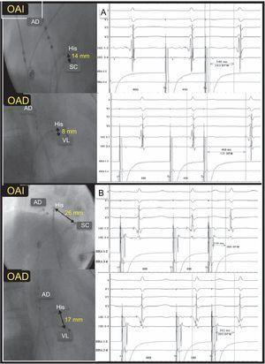 Correlación entre la distancia His-ostium de seno coronario e His-vía lenta sin correlación con el tiempo de conducción diferencial VL-VR. A: distancia corta His-ostium de seno coronario y vía conducción diferencial VL-VR significativa (458 – 246=212ms). B: distancia larga His-ostium de seno coronario y conducción diferencial VL-VR mínima (312–254=58ms). AD: aurícula derecha; OAD: proyección oblicua anterior derecha; OAI: proyección oblicua anterior izquierda; OSC: ostium del seno coronario; VL: vía lenta; VR: vía rápida.