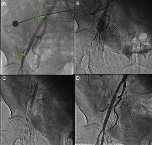 A: rotura femoral tras fallo del dispositivo de cierre Prostar, en una arteria femoral <6mm; la complicación se produjo tras implantar con éxito una válvula percutánea a través de un introductor de 18Fr. B: angiografía que demuestra la rotura del vaso. C: implante de 2 stents recubiertos. D: resultado final.