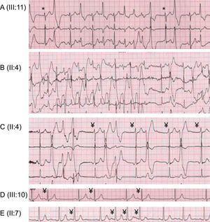 Arritmias ventriculares y no ventriculares durante las pruebas de esfuerzo. A: bigeminismo ventricular monomórfico y salvas de taquicardia ventricular polimórfica no sostenida (*escape de la unión). B: taquicardia ventricular no sostenida bidireccional. C: extrasístoles ventriculares, taquicardia ventricular polimórfica no sostenida, doblete ventricular polimórfico, bigeminismo ventricular monomórfico y ritmo auricular ectópico (¥). D: bigeminismo auricular (¥). E: extrasístoles auriculares aisladas y en salvas (¥).