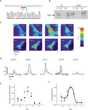 Evaluación funcional in vitro de la mutación RyR2R420Q. A: electroferograma que confirma la introducción del punto de mutación G1380A que da lugar a la conversión de arginina (A) a glutamina (G), RyR2R420Q, en el constructo del plásmido. B: análisis Western blot de RyR2 procedente de células HEK-293 transfectadas que confirma que las proteínas RyR2WT y RyR2R420Q se expresan en el homogeneizado y en las fracciones microsomales, pero no en el citosol. La flecha señala la banda de 595kDa (RyR2 marcada con proteína fluorescente verde intensificada). C: imágenes confocales de los cambios del calcio en células HEK-293 permeabilizadas que expresan RyR2WT (arriba) y RyR2R420Q (abajo) y sumergidas en una solución interna con un contenido de [Ca2+]i=10-7.5M y cafeína 5mM. D: ejemplos representativos de perfiles de fluorescencia obtenidos de células HEK-293 permeabilizadas con expresión de RyR2WT (negro) y RyR2R420Q (rojo) y sumergidas en soluciones que contienen diferentes [Ca2+]i y estimuladas con cafeína 5mM. E: promedio de liberación de calcio inducida por cafeína (valores máximos normalizados para el cociente de fluorescencia basal) en las células HEK-293 con expresión de RyR2WT (cuadrados) y RyR2R420Q (círculos) a diversas [Ca2+]i; los datos se expresan en forma de media ± error estándar de la media (n=20-50 células por grupo). F: promedio de fluorescencia deproteína fluorescente verde intensificada-RyR2 observada en las células HEK-293 con expresión de RyR2WT (n=195) y RyR2R420Q (n=241). △: incremento; Cyt: citosol; eGFP: proteína fluorescente verde intensificada; F: fluorescencia; F0: fluorescencia basal; H: homogeneizado; Mi: fracciones microsomales. ap < 0,05, RyR2R420Q frente a RyR2WT. bp < 0,001. Esta figura se muestra a todo color solo en la versión electrónica del artículo.