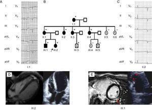 A y C: elecrocardiograma de los portadores, los voltajes bajos y la mala progresión de la onda R son la característica distintiva. Obsérvense las ondas T invertidas en las derivaciones precordiales izquierdas. B: árbol genealógico, la flecha negra indica el probando (III.2); + indica portadores. Las figuras negras corresponden a portadores afectados. D: la ecocardiografía y la resonancia magnética del probando mostraron volúmenes biventriculares normales, disfunción biventricular grave y ausencia de captación tardía de gadolinio. E: imágenes cardíacas y ecocardiográficas del III.1, las flechas rojas indican la mancha de captación tardía de gadolinio lateral en el ventrículo izquierdo. A la izquierda se observa un aneurisma ventricular derecho de la pared libre.