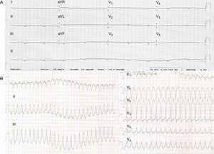 A: electrocardiograma del probando; obsérvense los voltajes notablemente bajos en todo el registro y las ondas T invertidas en las derivaciones precordiales derechas. B: taquicardia ventricular sostenida que indica origen en el infundíbulo de salida del ventrículo derecho.