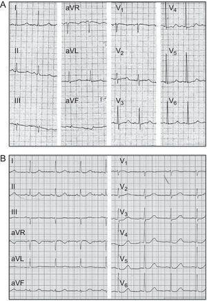 Electrocardiograma de 12 derivaciones del probando. A: después de la cardioversión eléctrica, intervalo QTc de 560ms. B: después del tratamiento con 5mg de bisoprolol/día, intervalo QTc de 490ms.